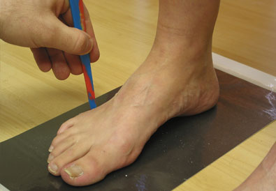 Orthotic Process